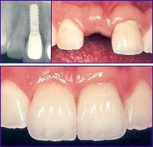 missing natural teeth